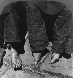 564px-Natural_vs._bound_feet_comparison,_1902